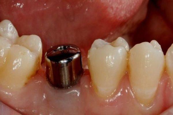 Имплантация коренного зуба