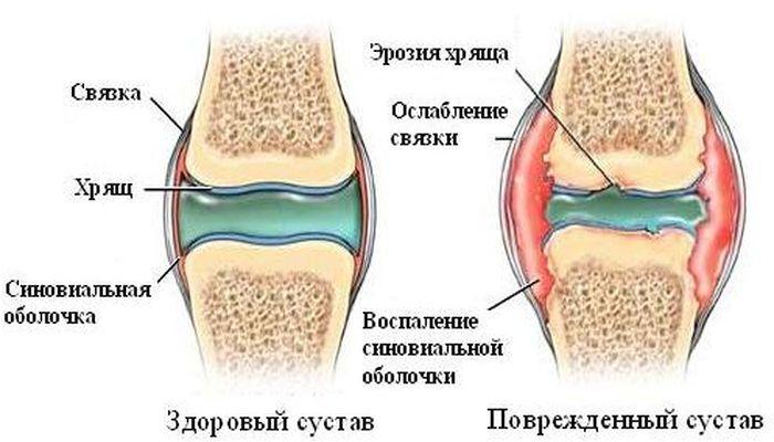 Пример здорового и поврежденного сустава