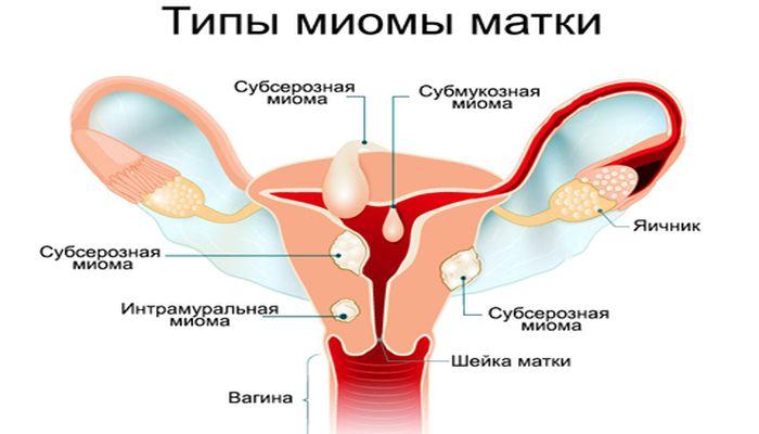 Типы миомы